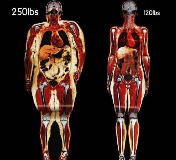 escaner-cuerpo-completo