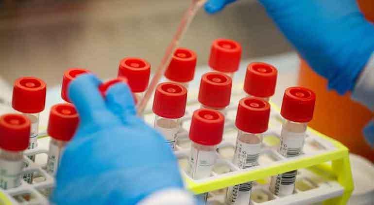 Prepara El Paso pruebas de anticuerpos por coronavirus