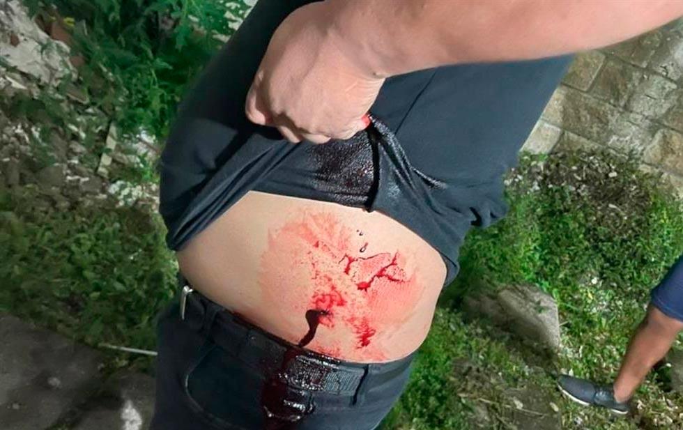 Atacan a tiros a equipos de candidatos en Tapilula, Chiapas