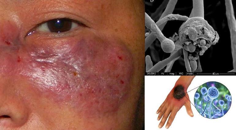 ¿Qué es el hongo negro, infección relacionada a COVID-19?