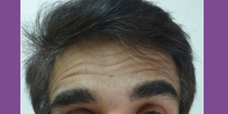 Before-Forehead lines