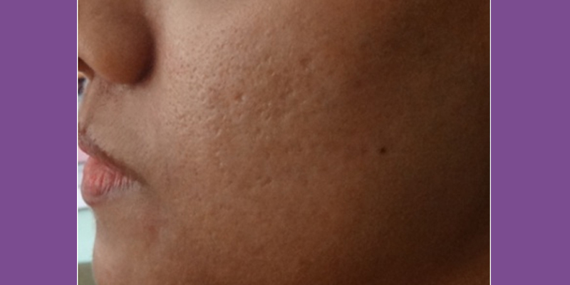 After-Microneedling Radiofrequency
