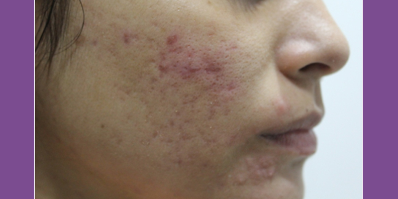 Before-Microneedling Radiofrequency