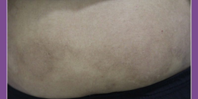 After-Psoriasis Treatment