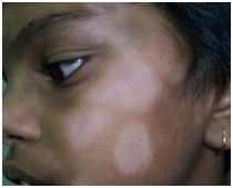 Treatment for hypopigmentaion of facial skin