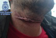 La herida provocada por el gorrilla condenado a ser expulsado del país. / PN