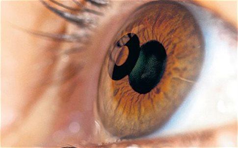 Κίτρινα μάτια: Τι σύμπτωμα είναι – Ποιοι πρέπει να προσέχουν
