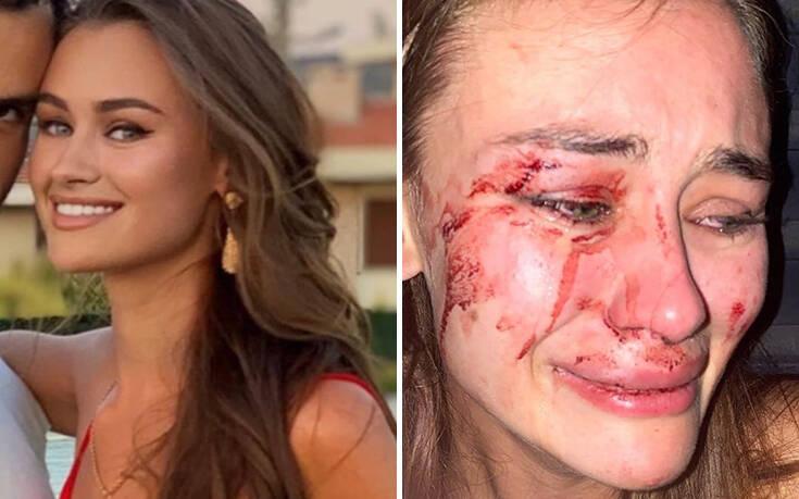 Daria Kyryliuk: Το γνωστό μοντέλο από την Ουκρανία καταγγέλλει ότι ξυλοκοπήθηκε άγρια στην Τουρκία