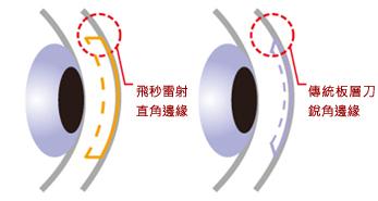 IntraLase飛秒雷射 讓近視雷射手術更安全-丘子宏眼科