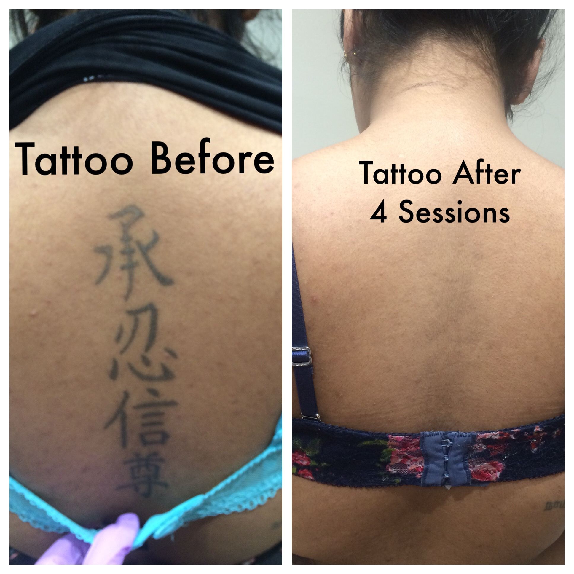 Tattoo Removal Treatment  Laser