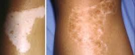 vitiligo pigmentação e cura