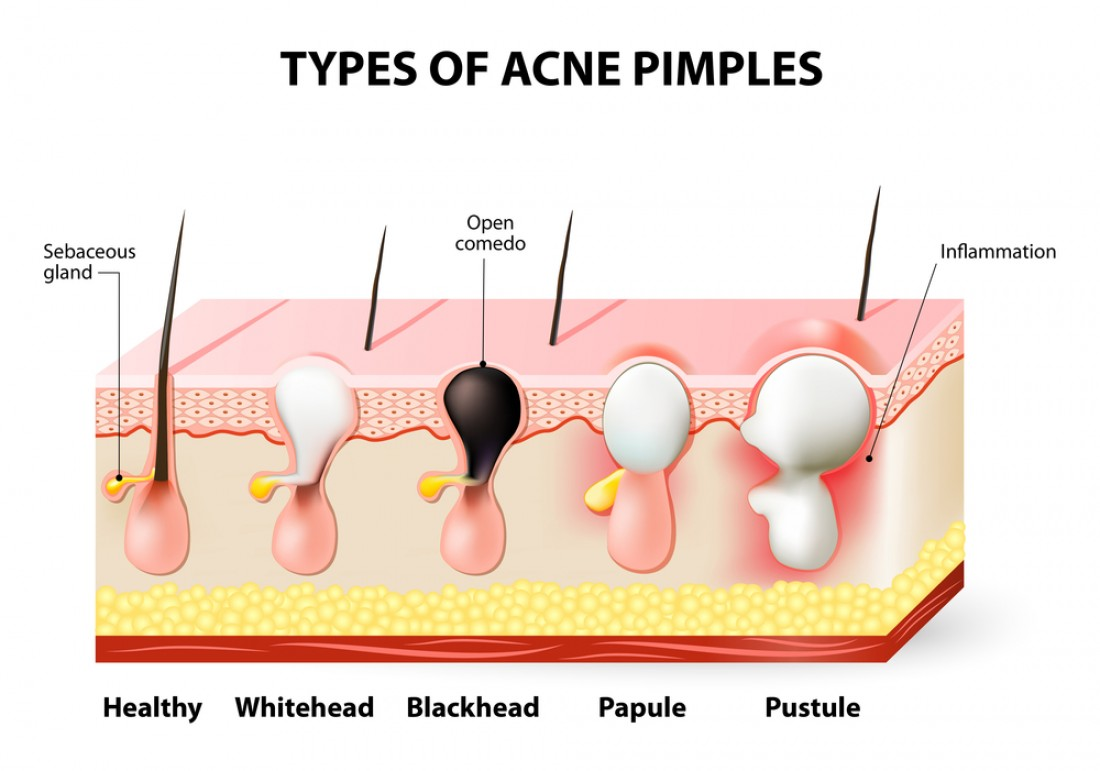 hight resolution of deep pimple diagram images gallery
