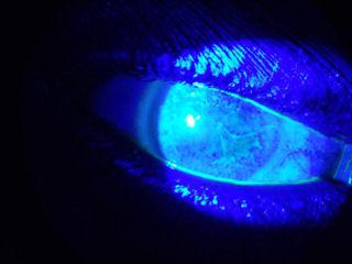 LASIK sonrası kuru göz