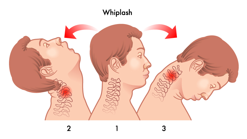 The Whiplash - What is it?