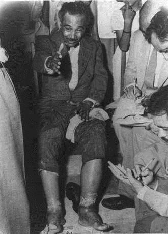 Image result for foto de albizu campos con sus piernas tratadas con radiacion