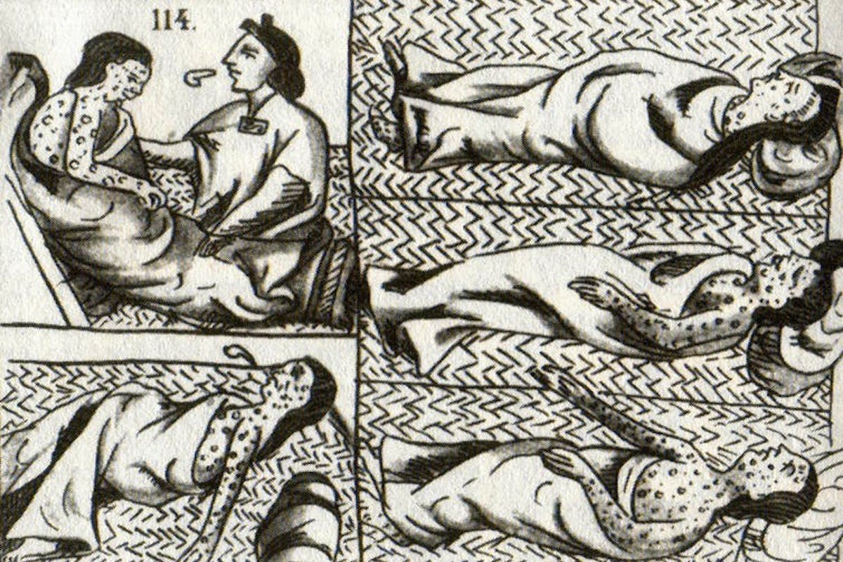 How Smallpox Devastated the Aztecs and Helped Spain Conquer a Civilization 500 Years Ago
