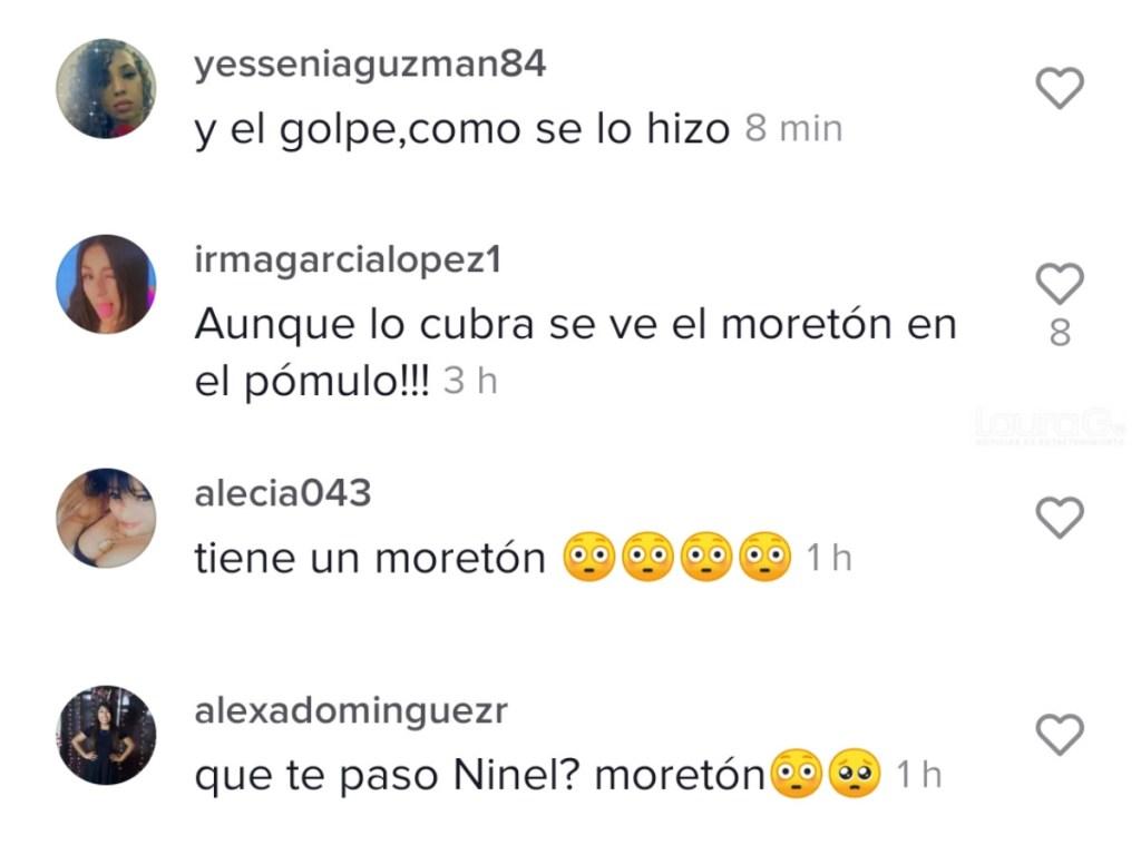 Comentarios Ninel Conde
