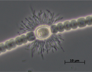 Anabaena heterocyst and associated epibiont