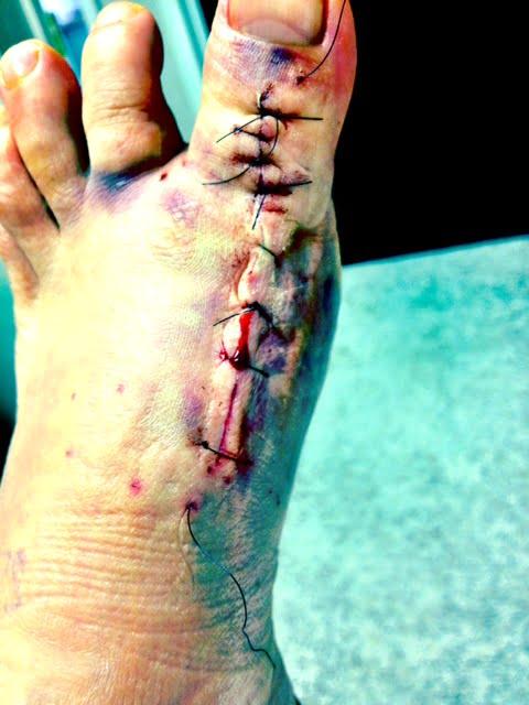footsurgery