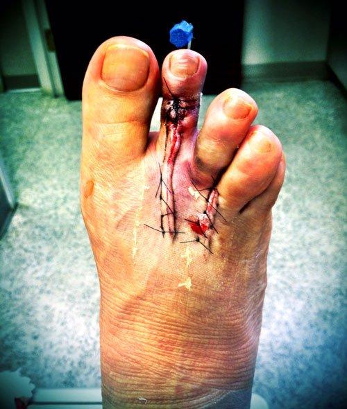 footsurgerypart3