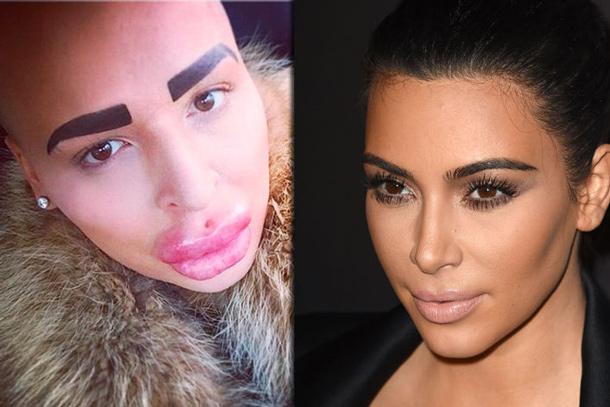 Il paie 150.000$ pour ressembler à Kim Kardashian (fail)