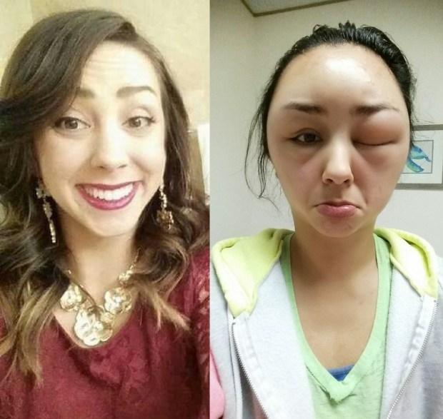 allergie-tete-gonflee-avant-apres-comparaison