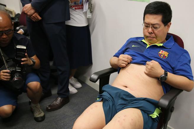 Howard Lam muestra las supuestas marcas de los golpes