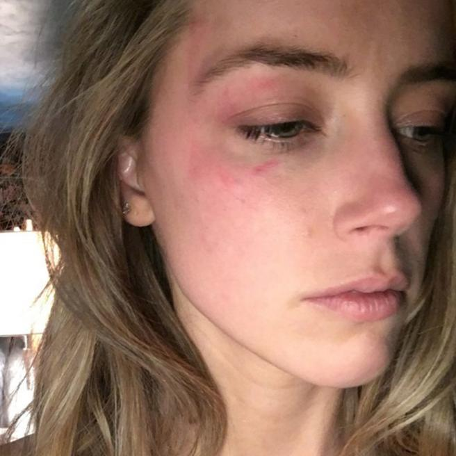 Amber Heard accused Johnny Depp of aggression using several pictures as proof
