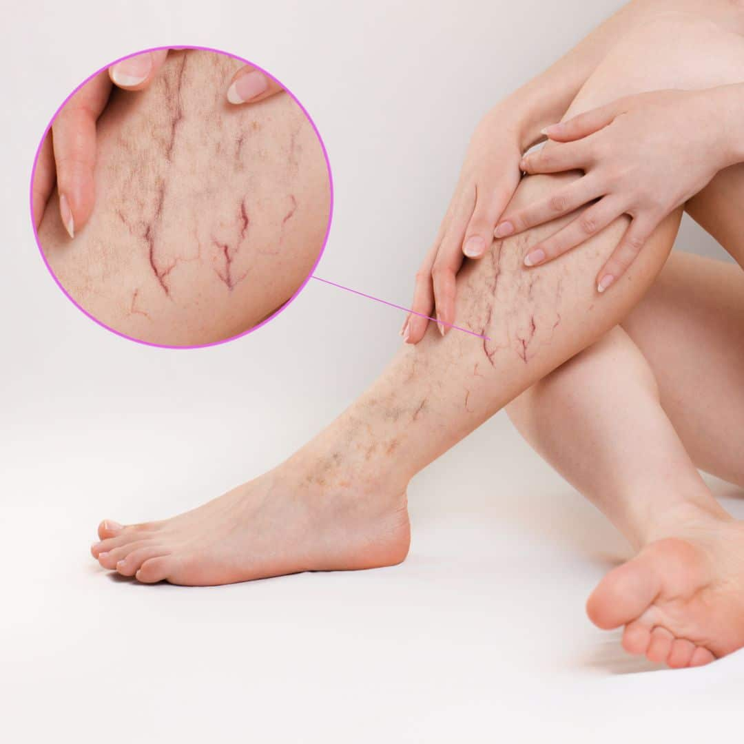 Is Endovenous Radiofrequency Ablation The Right Vein