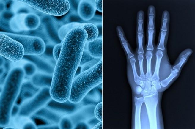 Inflamația articulară cu ulcere, Totul despre artrita: tipuri, simptome, diagnostic, tratament