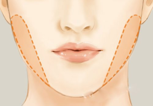 grasa facial