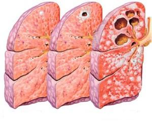 Schematizzazione degli effetti della TBC sui polmoni