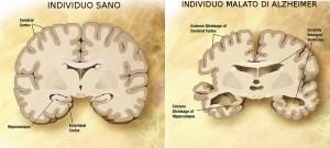 sano-alzheimer