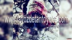 Matan con ácido a mujer policía de Chalma   LVDT