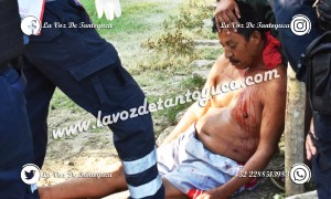 Tras agresión, muere vendedor de caballos en Poza Rica | LVDT