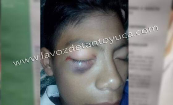 Tras brutal golpiza, alumno de secundaria pierde la vista | LVDT