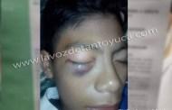 Tras brutal golpiza, alumno de secundaria pierde la vista