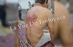 Denuncia motociclista que fue golpeado y violado por elementos de la Fuerza Civil | LVDT