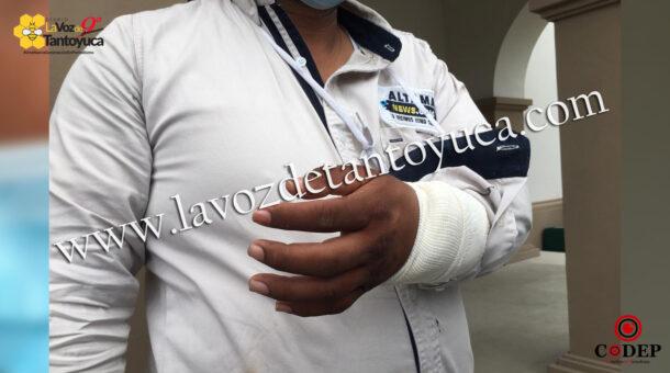Agreden a reportero en Altamira | LVDT