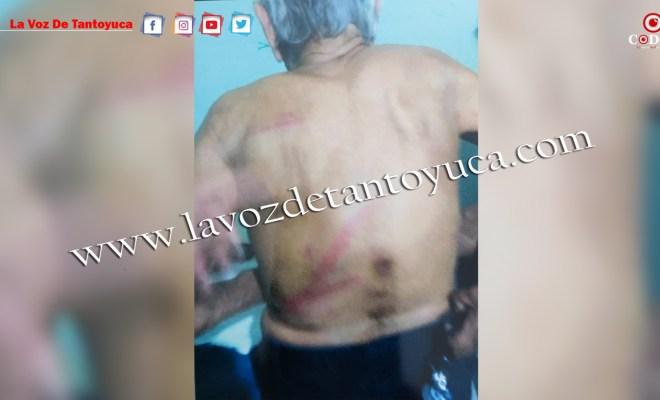 Violento hijo, golpea a palos a su padre y le lesiona sus genitales | LVDT