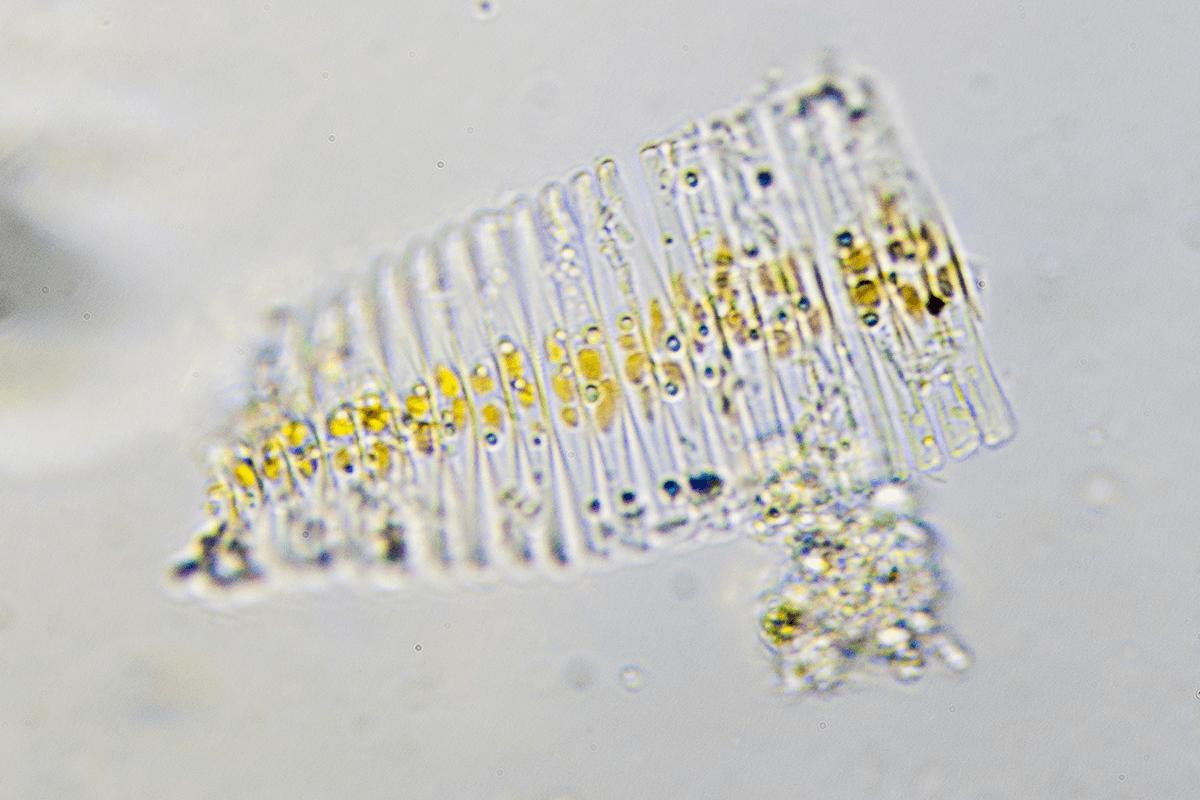 Diatoms, Lake Champlain