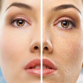 Retix C – retibrazja dermoestetyczna z retinolem i witaminą C. - Retibrazja biologiczna głęboka odnowa skóry. Prezentujemy jeden z ciekawszych zabiegów kosmetologii estetycznej, który w szybki i widoczny sposób przynosi efekty na skórze nawet po pierwszym zabiegu.