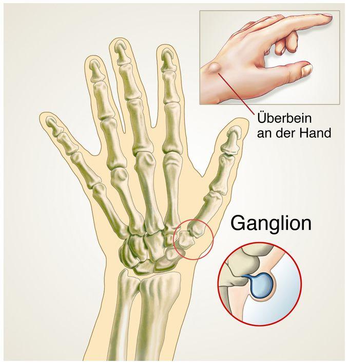 ganglion harmlose zyste an sehne und