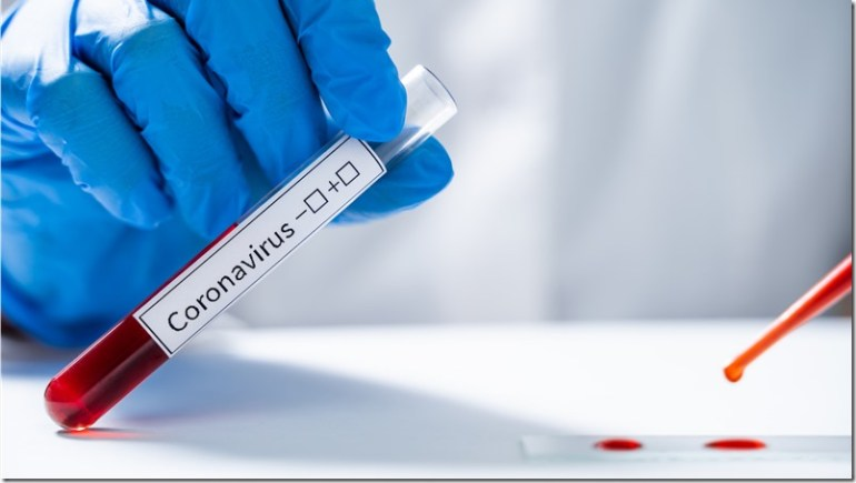 Laboratory assistant tests blood for new coronavirus from China 2019-nCoV