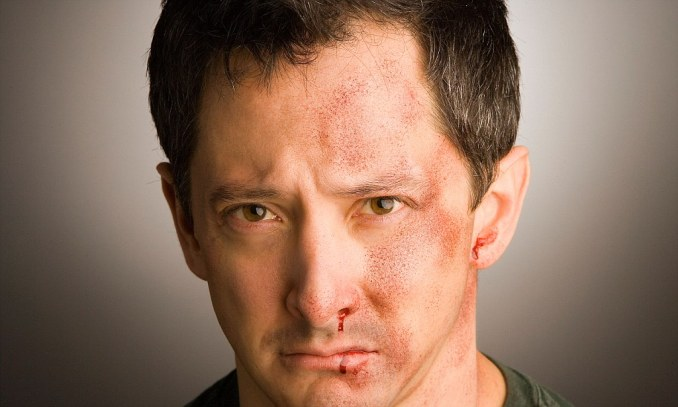 Close up of injured man's face with bruises