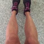 PICTURE OF LEGS EVEN AFTER 5 YEARS SINCE THE SEVERE PSORIASIS