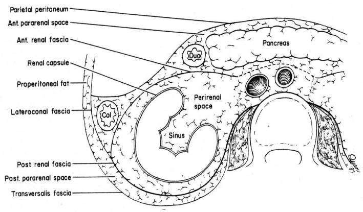 LearningRadiology-Retroperitoneal Spaces Anatomy and