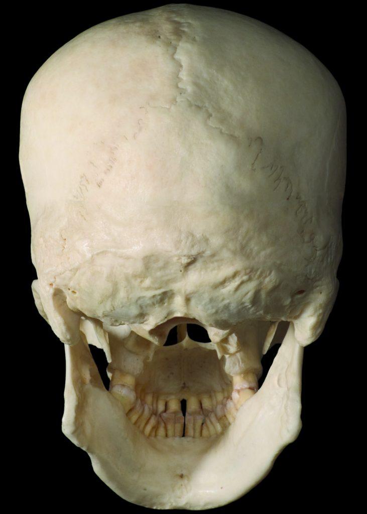 Cranium  Learn Muscles