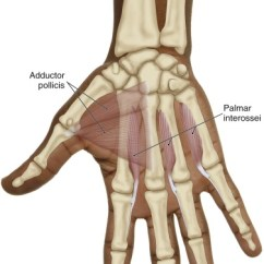 Palmar Hand Muscle Anatomy Diagram Crabtree Intermediate Switch Wiring The Unusual Suspects Interossei Intrinsic Muscles Of Anterior View Right Pi Group Courtesy Joseph E Muscolino And Bone Manual With Trigger Points