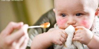 Solusi Alergi Anak Sederhana Agar Masa Kecilnya Aman